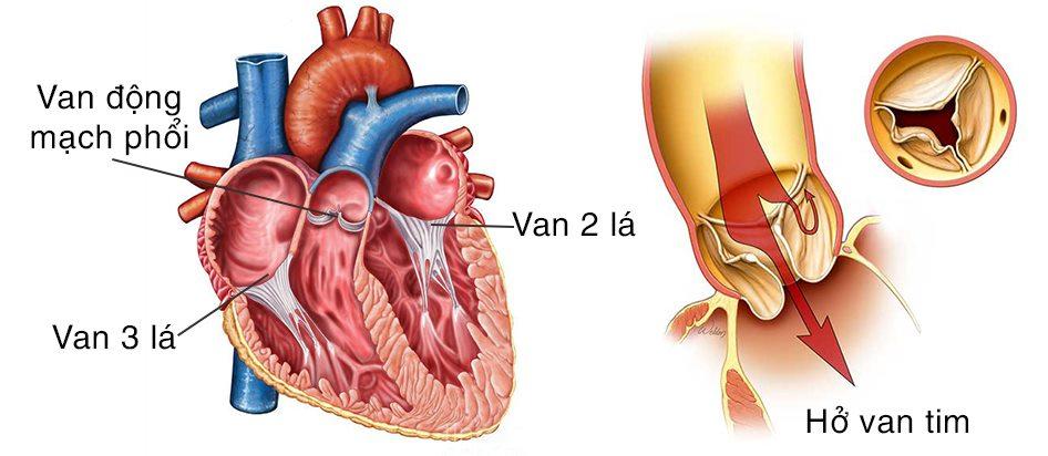 Triệu chứng hở van tim là gì? Làm thế nào để nhận biết?